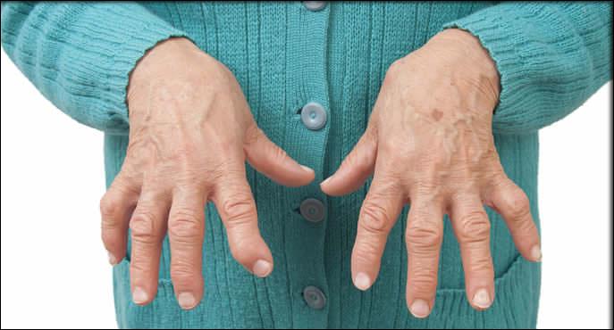 How to treat osteoarthritis in hands