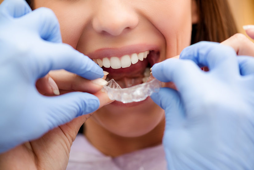 Reasons to Prefer Invisalign Over Traditional Braces