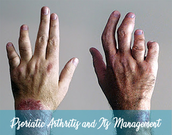 Psoriatic Arthritis and Its Management