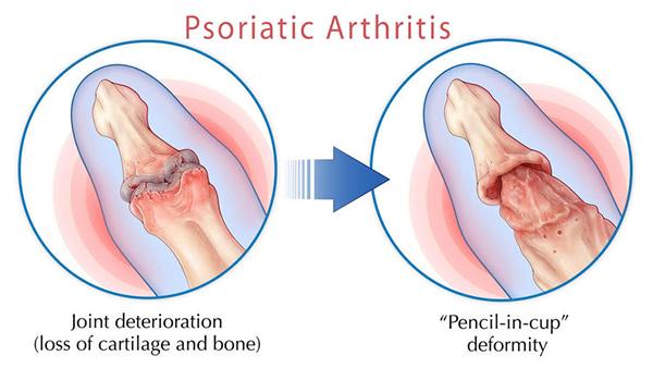 Psoriatic Arthritis and Its Management