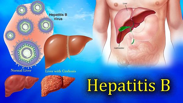हेपेटाइटिस बी