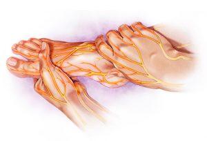 Ayurvedic Management of Diabetic foot