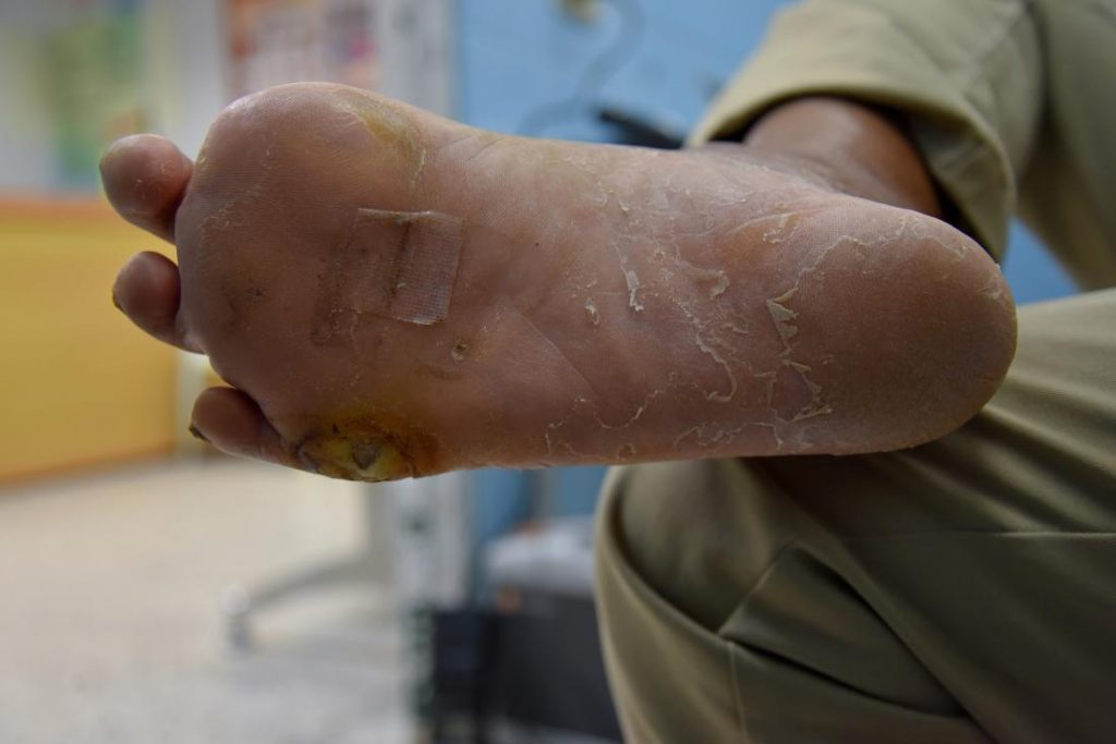 signs and symptoms of Diabetic foot
