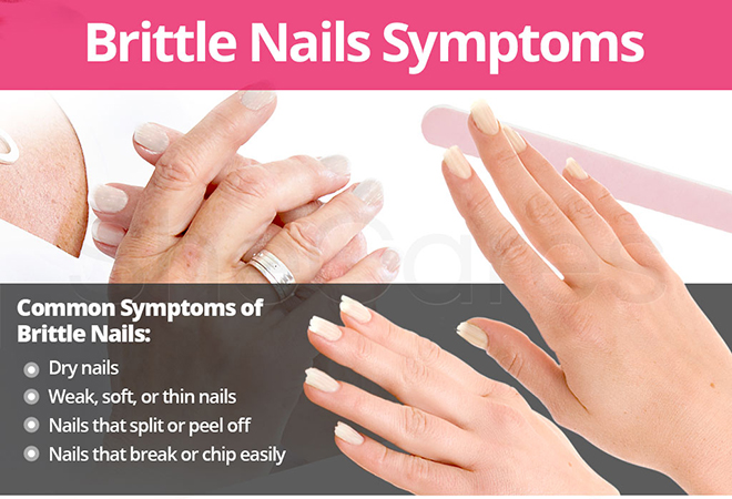 Symptoms of Brittle Nails