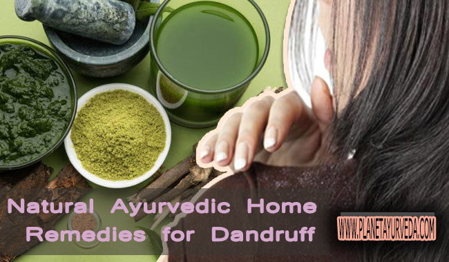Ayurvedic Home Remedies for Dandruff