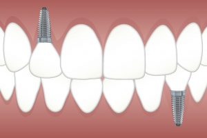 How Dental Implants Improve Your Smile