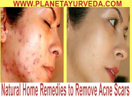 Acne Scars Home Remedies