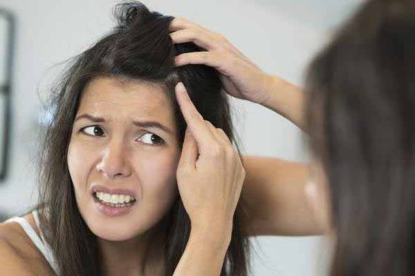 Remedies-for-Dandruff-and-Hair-fall-in-Winter