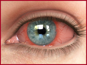 Herbs for Dry Eye Syndrome