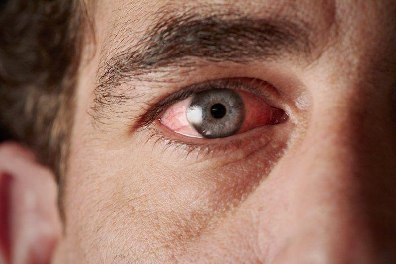 Alternative Treatment of Dry Eye Syndrome