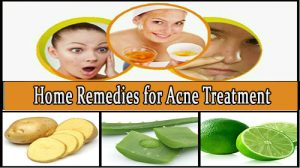 Home Remedies for Acne Treatment