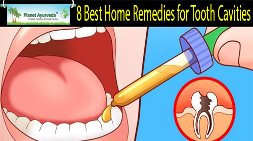 Home Remedies for Tooth Cavities