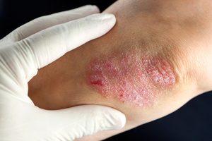 Psoriasis-on-elbow