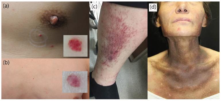 Ayurvedic remedies for Castleman Tumor