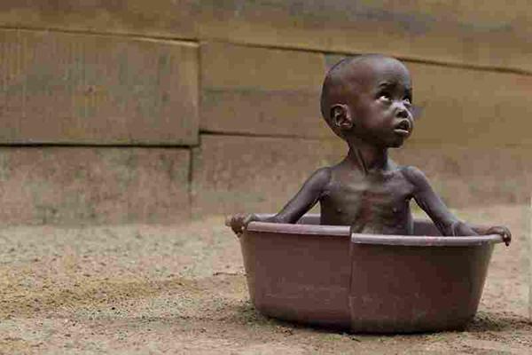 Malnutrition