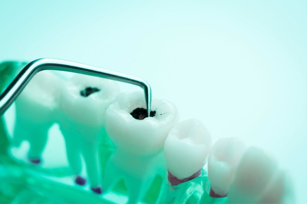 Simple Tips To Prevent Cavities