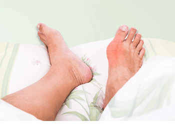 How to Reduce High Uric Acid